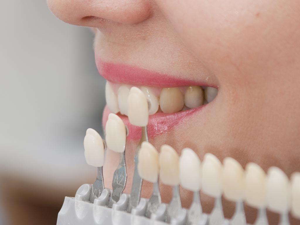 El Carmen: proveerán de prótesis dentales a personas de bajos recursos