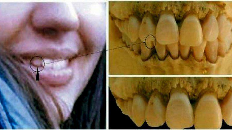Mostraron las similitudes entre la dentadura de María Cash y la del cráneo encontrado en Bolivia
