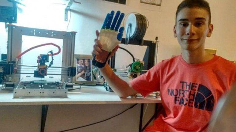 ¡Genio total! Mendocino fabrica prótesis de manos y las ofrece gratis por Internet