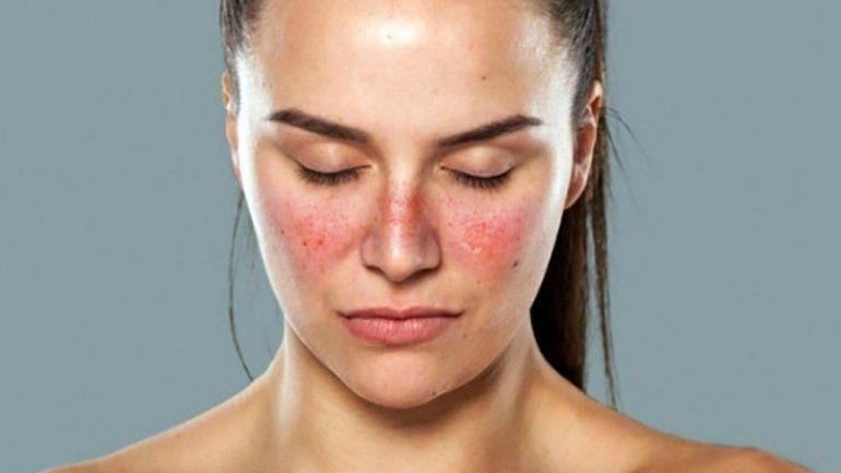 Día Mundial del Lupus: ¿En qué consiste esta enfermedad?