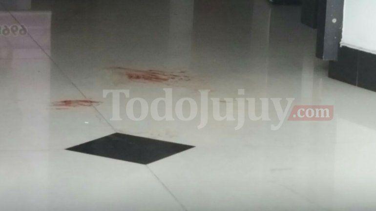 Pleno centro: un delincuente entró a robar a una peluquería y le disparó a una mujer en la pierna