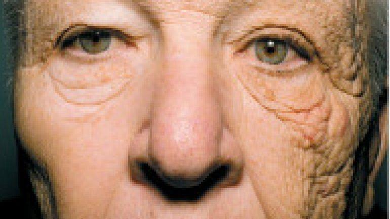 Envejeció de un solo lado: la verdad sobre el cuidado de la piel es viral