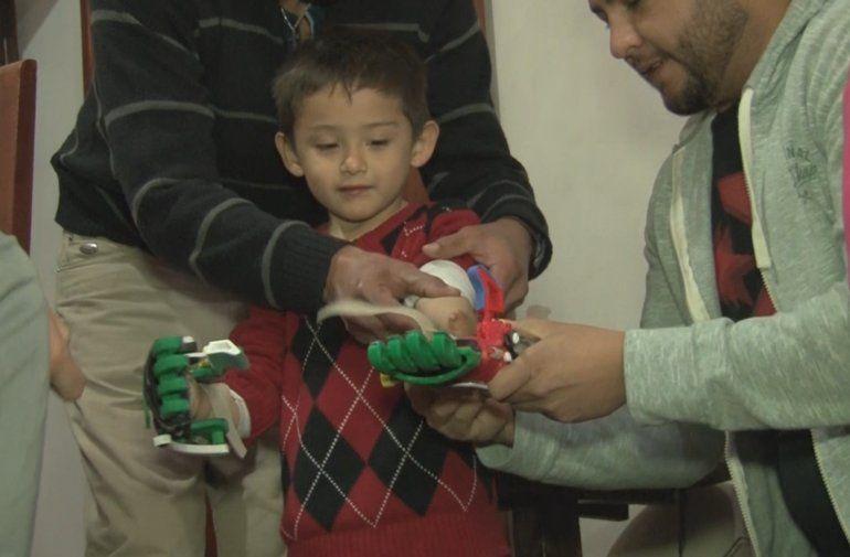 Conocé la historia de Benjamín, el nene jujeño que recibió dos prótesis de mano impresas en 3D
