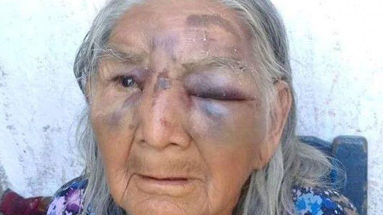 Detuvieron al hombre que golpeó a su abuela y estaba prófugo