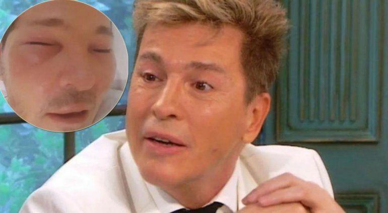Guido Süller internado y con la cara desfigurada