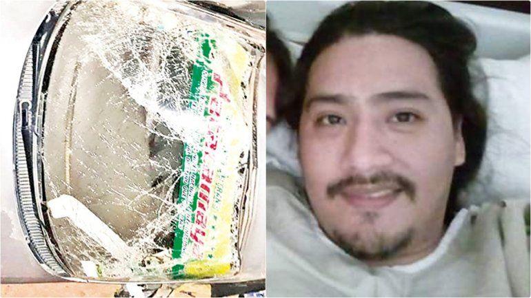 Jujeño que tuvo un accidente en Bolivia tiene que ser operado y necesita la ayuda de todos