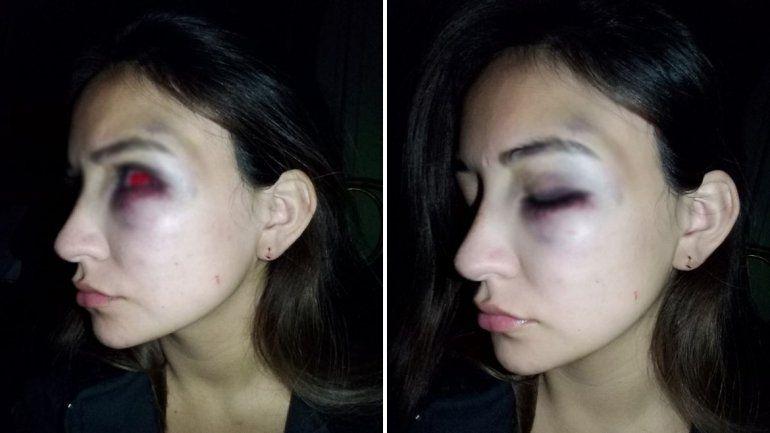 Brutal golpiza a una mujer: detuvieron al agresor