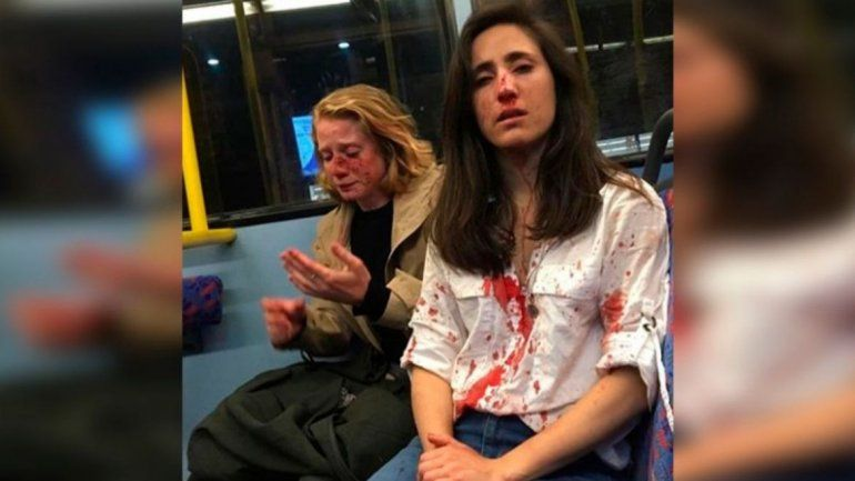 Brutal agresión a una uruguaya y su pareja en un bus en Londres