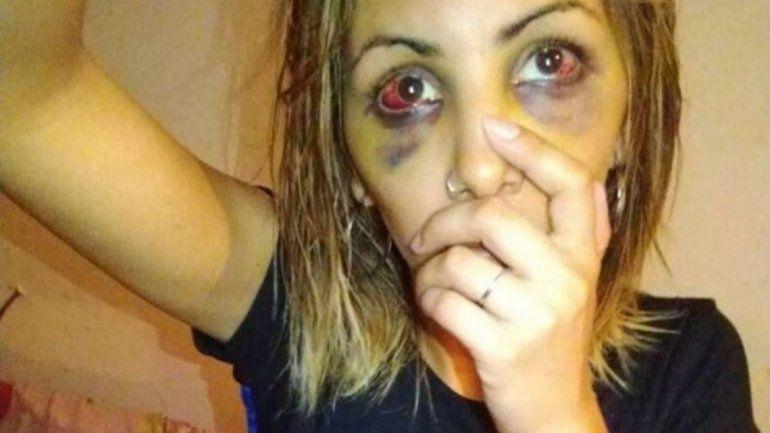Atacó brutalmente a su ex novia y amenazó con matarla