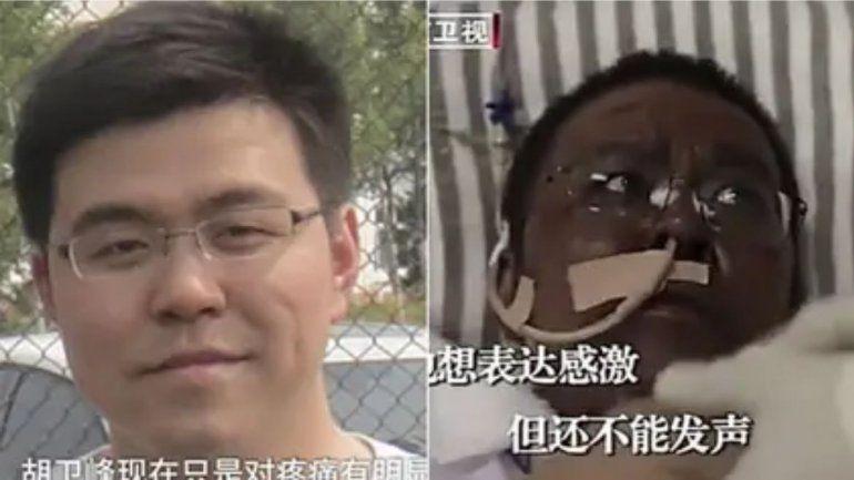 Murió uno de los médicos con COVID-19 que cambió el color de piel